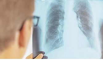 Case Study: Tuberculosis