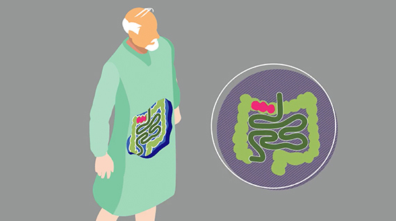 <em>C. difficile</em> is a global health problem