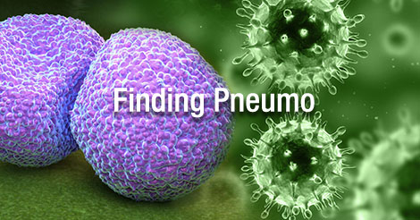 The Biological Link between Influenza and Pneumonia and the Importance of Diagnostic Testing